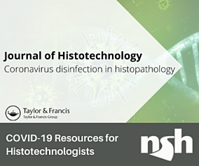 ImpcqiYQx2dqxqFSWazS_Open access article for Histotechnologists (1)
